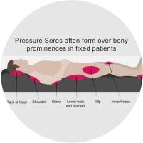 Bed sores